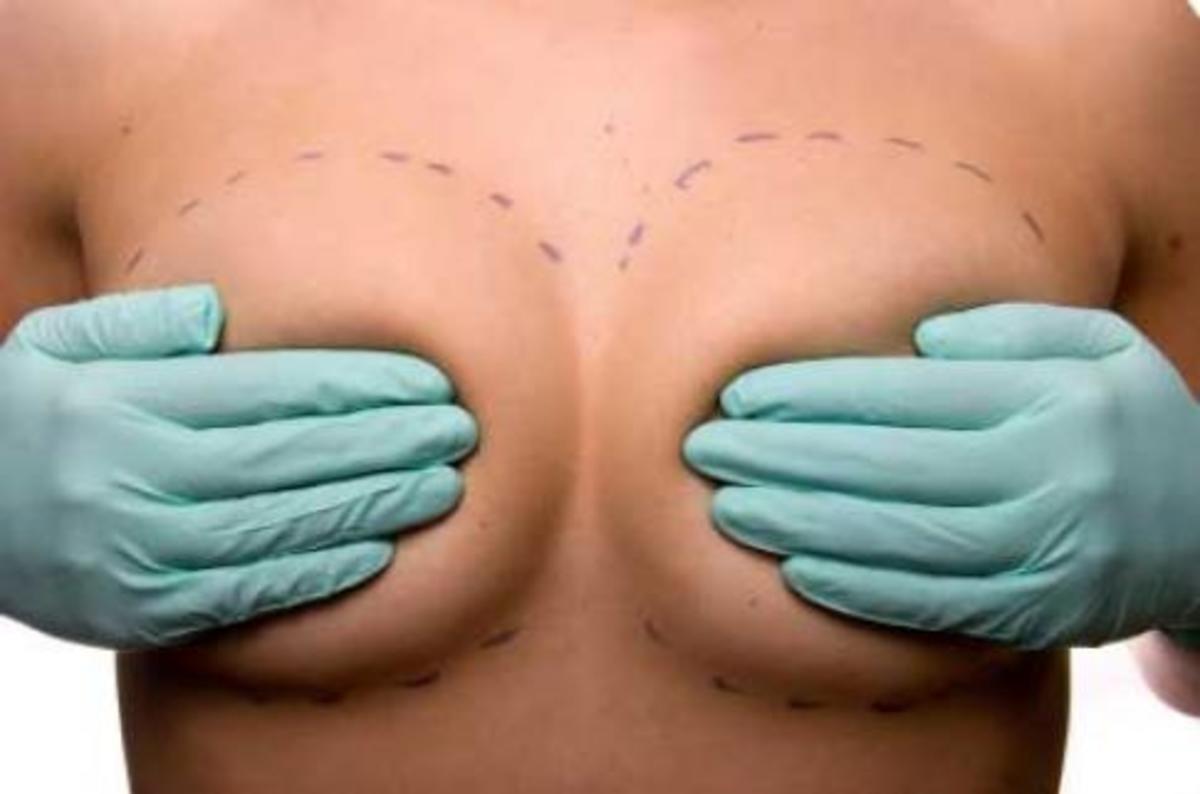 Πάνω από 12.000 γυναίκες αφαίρεσαν ελαττωματικά εμφυτεύματα στήθους   Newsit.gr