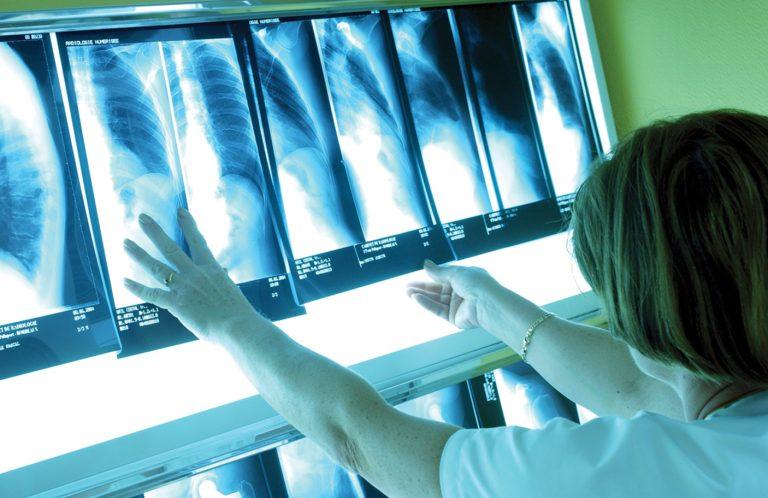75% αύξηση στα νέα περιστατικά καρκίνου μέχρι το 2030 | Newsit.gr