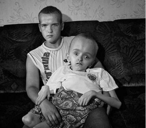 Τσερνομπίλ 25 χρόνια μετά – Οδοιπορικό στην πόλη φάντασμα – Η ακτινοβολία ακόμη σκοτώνει | Newsit.gr