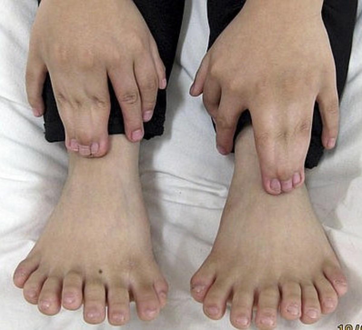 Απίστευτο κι όμως αληθινό! Γεννήθηκε με 31 δάχτυλα | Newsit.gr