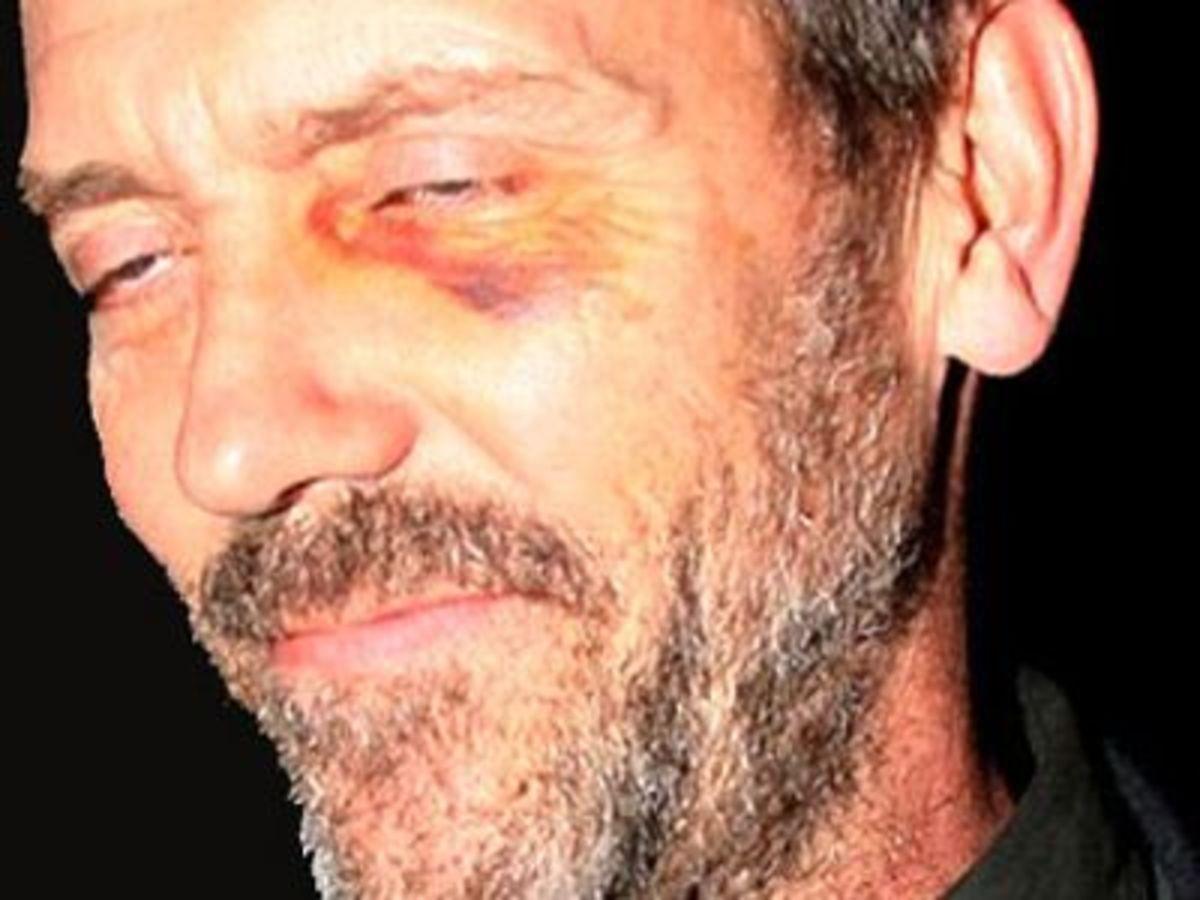 O Dr.House σε ρόλο Rocky! | Newsit.gr