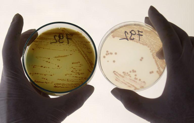 Ο τρόμος του E.coli έφτασε στην Ελλάδα μέσω Lidl! | Newsit.gr