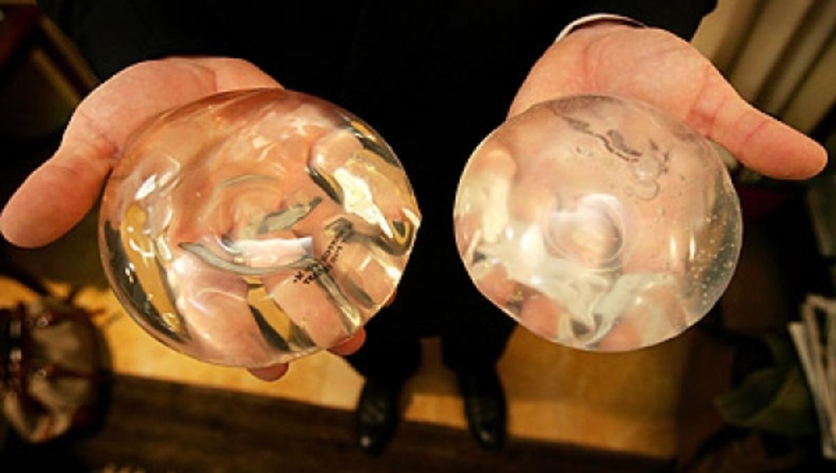 Έρευνα και στην Αυστραλία για τα εμφυτεύματα στήθους | Newsit.gr
