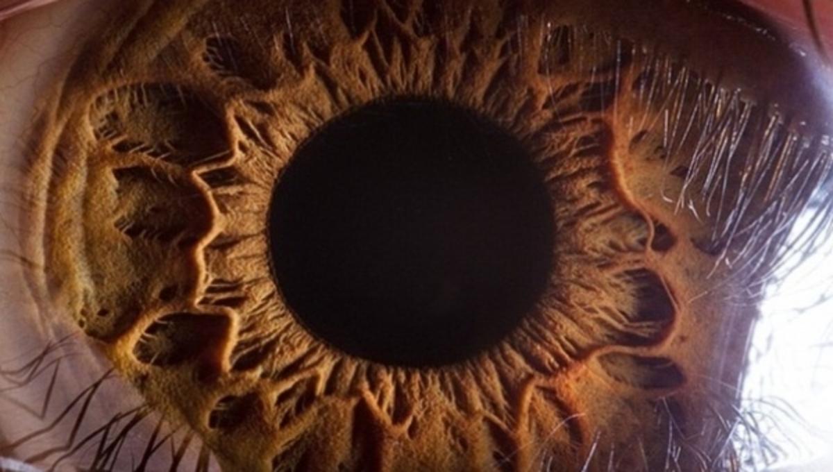 Το μάτι από κοντά – Απίστευτες φωτoγραφίες που δεν έχετε ξαναδεί | Newsit.gr