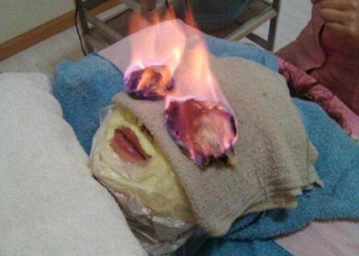 Η θεραπεία που μας άφησε άφωνες! Γίνεται με φωτιά στο πρόσωπο! | Newsit.gr