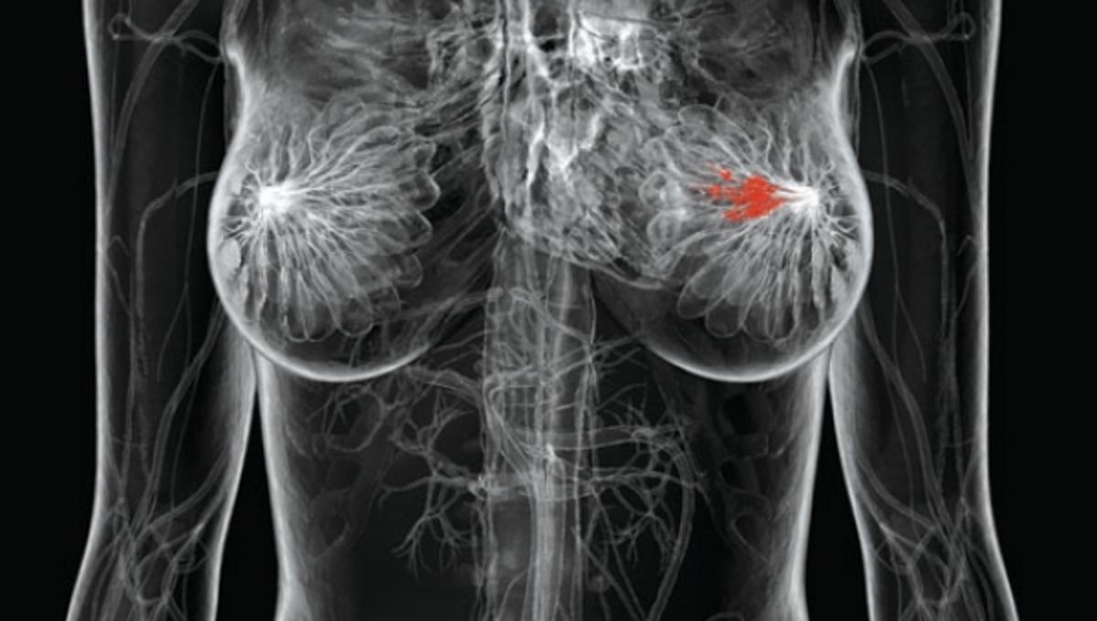 Πράσινο φως για φάρμακο κατά του καρκίνου του μαστού | Newsit.gr