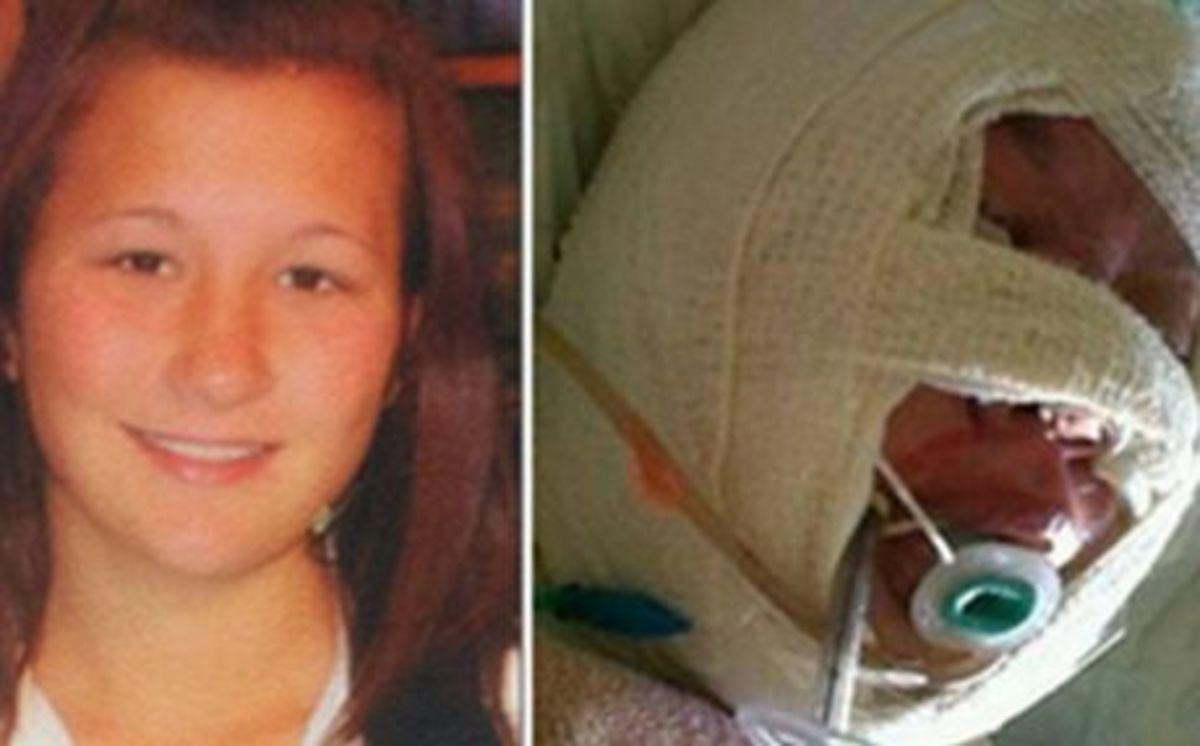 Πέθανε η 18χρονη Ελληνίδα που έκαψαν οι σατανιστές | Newsit.gr