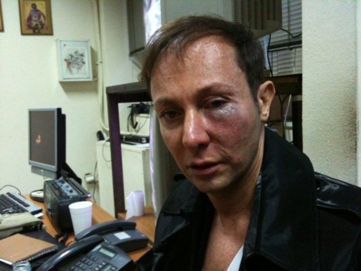 Ο Κωστέτσος ξέσπασε μέσα από το Facebook! | Newsit.gr