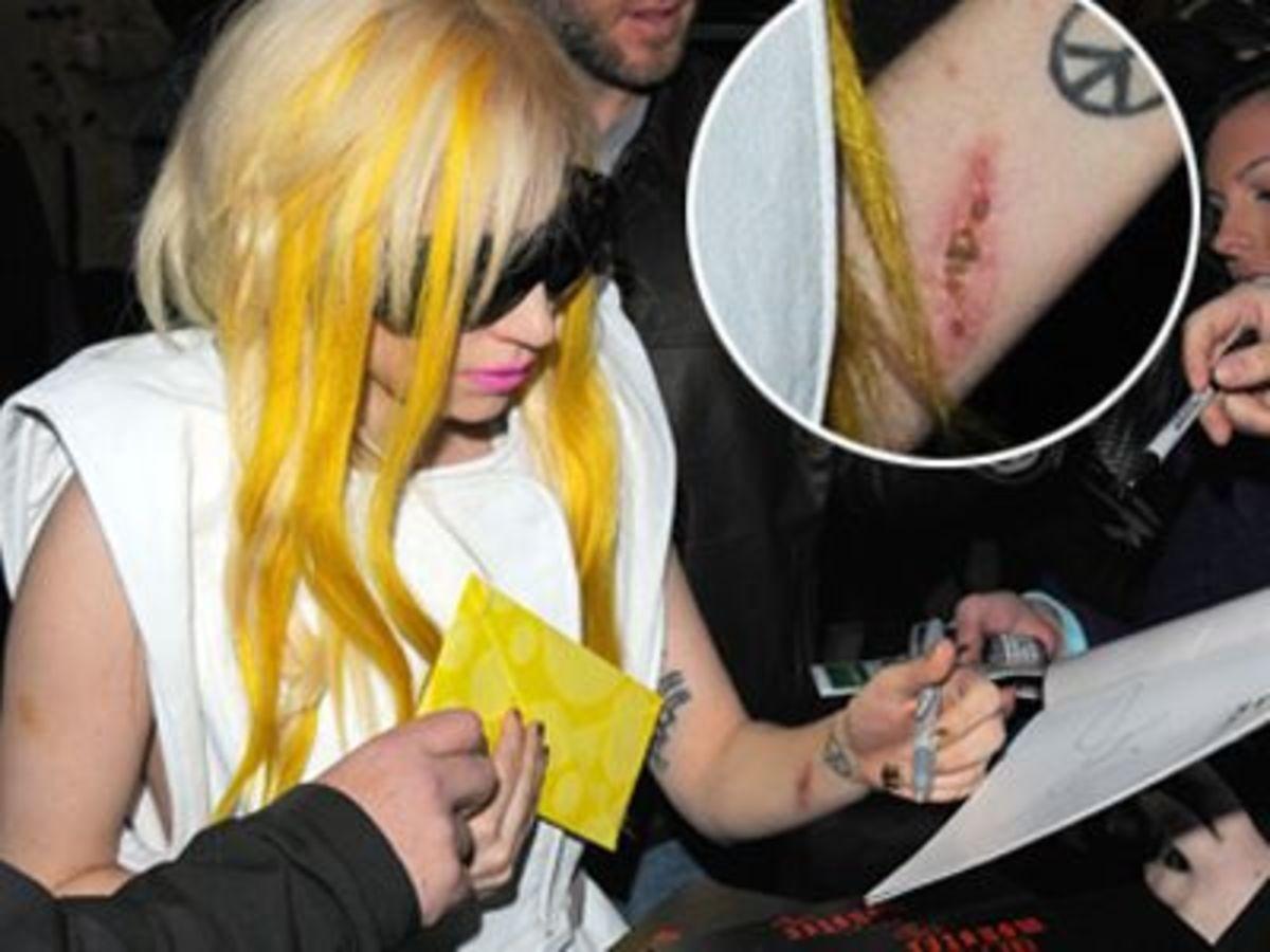 Πού οφείλεται η τεράστια γρατσουνιά της Lady GaGa; | Newsit.gr