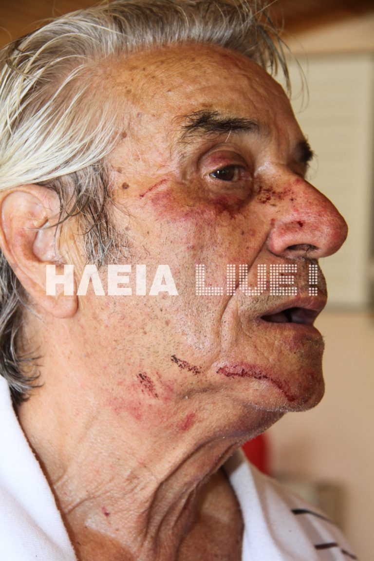 Ηλεία: »Με σακάτεψαν στην κυριολεξία» – Δείτε το βίντεο! | Newsit.gr