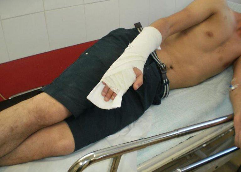 Χανιά: Επίθεση με σιδηρολοστούς σε δύο μετανάστες – ΦΩΤΟ | Newsit.gr