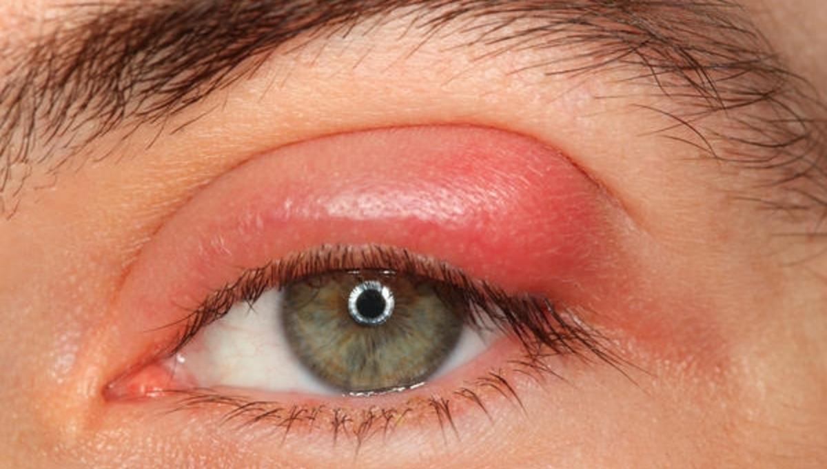 Κριθαράκι στα μάτια; Γιατί βγαίνει; τι πρέπει να κάνουμε; | Newsit.gr