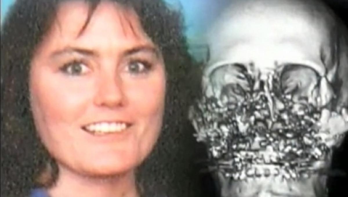 Την πυροβόλησαν στο πρόσωπο και οι γιατροί της μεταμόσχευσαν νέο – VIDEO | Newsit.gr