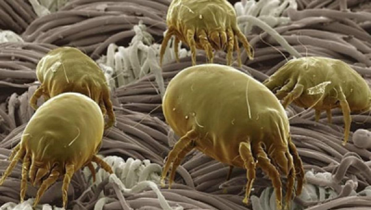 37 εκατ. μικρόβια!!!! κουβαλάμε όταν μπαίνουμε σε ένα δωμάτιο | Newsit.gr
