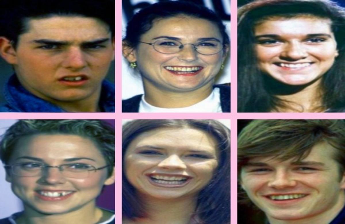 ΔΕΙΤΕ τα χαμόγελα των διάσημων… πριν και μετά!   Newsit.gr