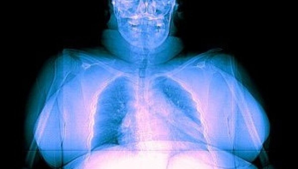 Οι παχύσαρκοι δέχονται περισσότερη ακτινοβολία στις ακτινογραφίες | Newsit.gr