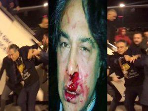 Αγριότητες Ερντογάν – Λίντσαραν και συνέλαβαν σχεδιαστή μόδας γιατί γιόρτασε την Πρωτοχρονιά!