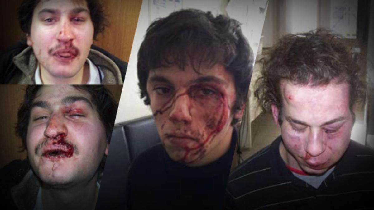 Τι λένε δύο αυτόπτες μάρτυρες για τα κακοποιημένα πρόσωπα των ληστών-τρομοκρατών – Ανατριχίλα από τις φωτογραφίες τους   Newsit.gr