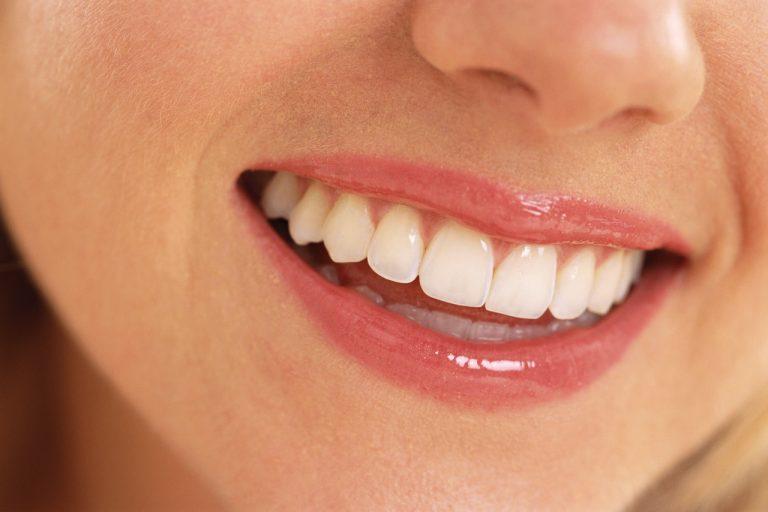 Πως να αποκτήσετε το τέλειο χαμόγελο! | Newsit.gr