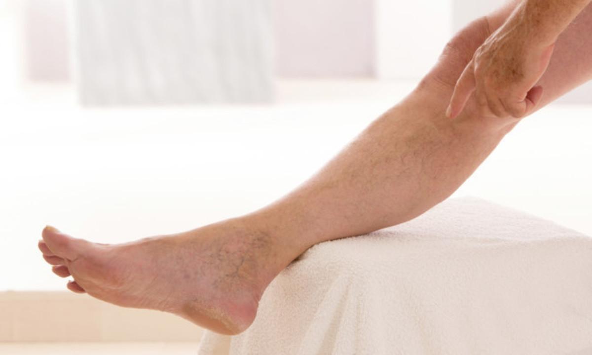 Φλεβίτιδα: Αίτια και συμπτώματα | Newsit.gr