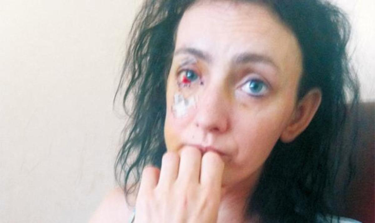 """Η μητέρα των παιδιών που παρέσυρε ο μοτοσικλετιστής ξεσπά: """"Πρέπει να ξαναγεννήσω τα παιδιά μου για να γίνουν όπως ήταν""""   Newsit.gr"""