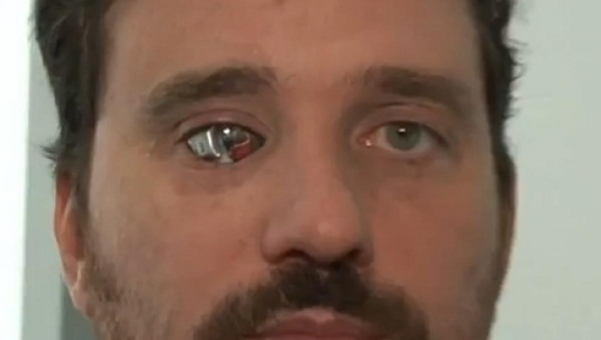 Δείτε πως βλέπει ένας άνθρωπος με… βιονικό μάτι- ΒΙΝΤΕΟ | Newsit.gr
