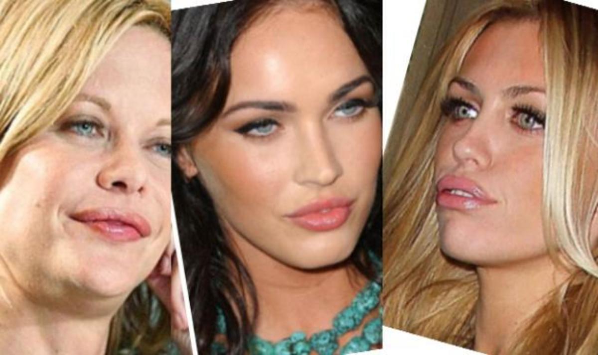 Γιατί οι star έχουν «κόλλημα» με τα φουσκωτά χείλη; Δες φωτογραφίες | Newsit.gr