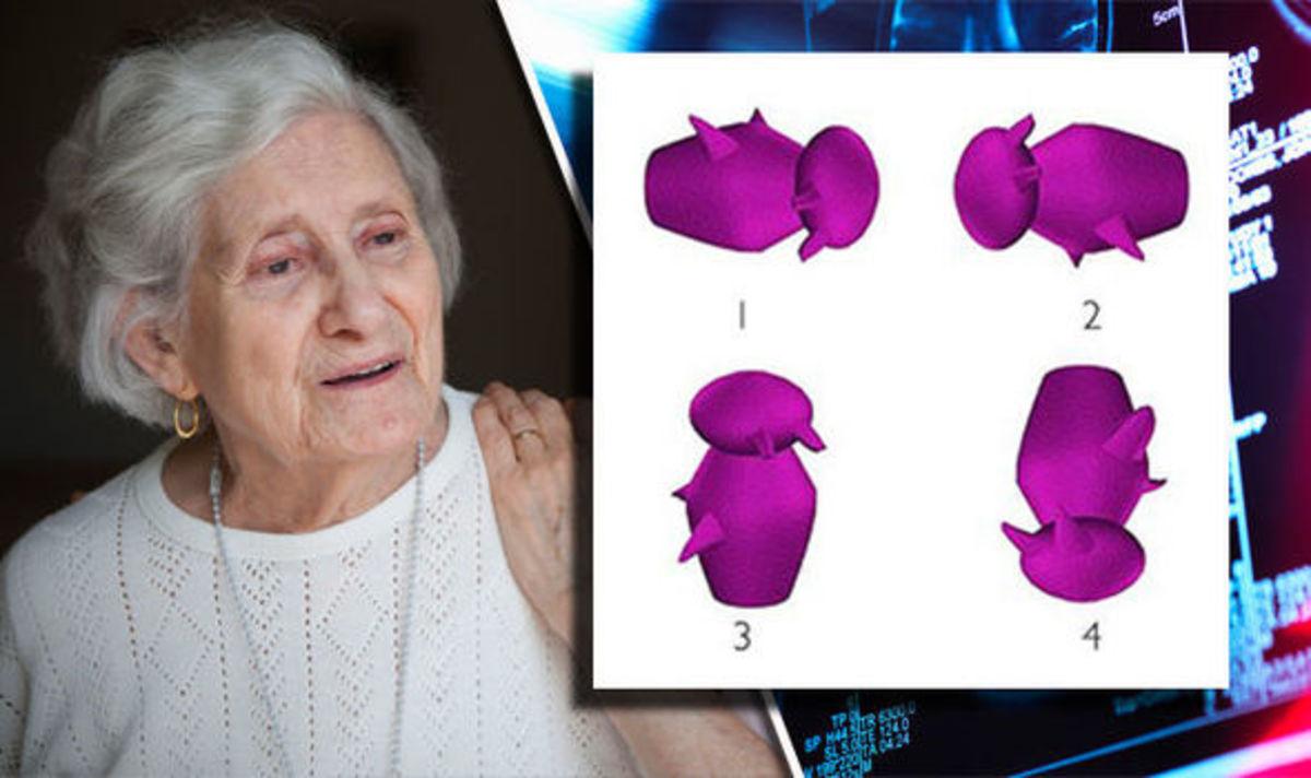 Ποιο σχήμα διαφέρει από τα άλλα; Αυτό το τεστ «προβλέπει» το Αλτσχάιμερ λένε επιστήμονες! [pics]   Newsit.gr