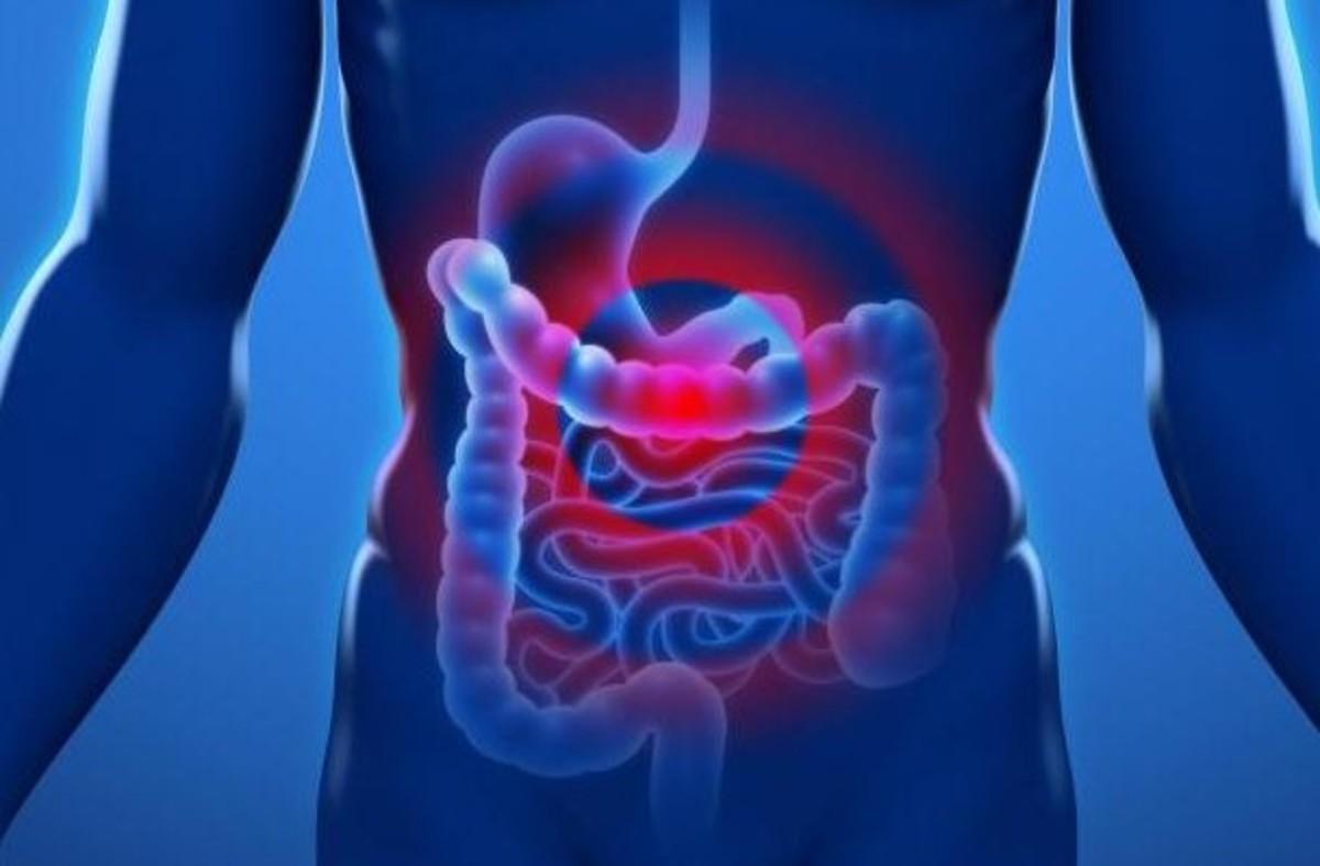 Περιτονίτιδα: Τι είναι η νόσος – Προσοχή στα «απλά» στομαχικά συμπτώματα! | Newsit.gr
