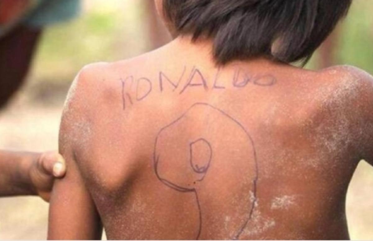 Ραγίζει καρδιές ο φτωχός… Ρονάλντο! Ο πιτσιρικάς που μας βάζει να σκεφτούμε διπλά [pic] | Newsit.gr