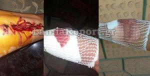 Λαμία: Τρόμος για 52χρονο – Του επιτέθηκαν σκύλοι στο δρόμο