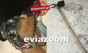 Χαλκίδα: Τον χτύπησε με σκαλιστήρι! Απίστευτη τροπή σε καβγά οδηγών!