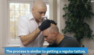Αν είστε καραφλός, υπάρχει λύση! Τατουάζ στο κεφάλι δίνει την αίσθηση ότι έχετε μαλλιά