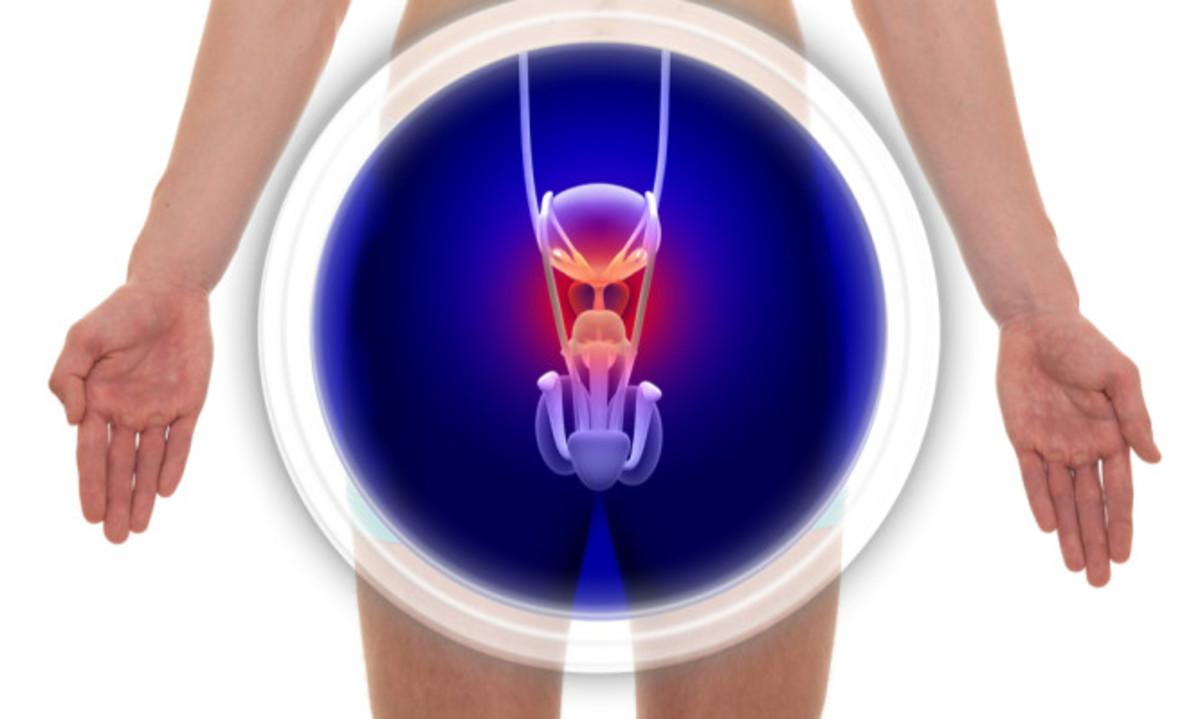 Καρκίνος του προστάτη: Τα πρώιμα συμπτώματα που πρέπει κάθε άντρας να γνωρίζει | Newsit.gr