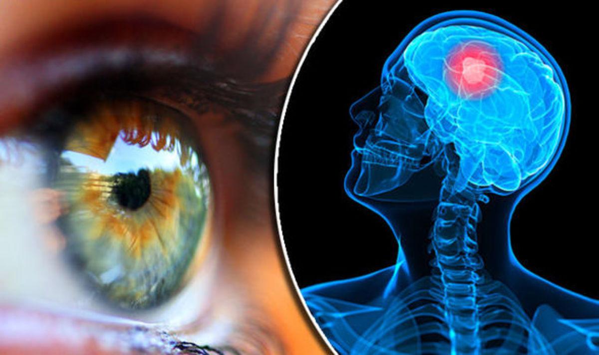 Ποιες σοβαρές παθήσεις φαίνονται στα μάτια – Πέντε περιπτώσεις που ένα τεστ σώζει ζωές | Newsit.gr