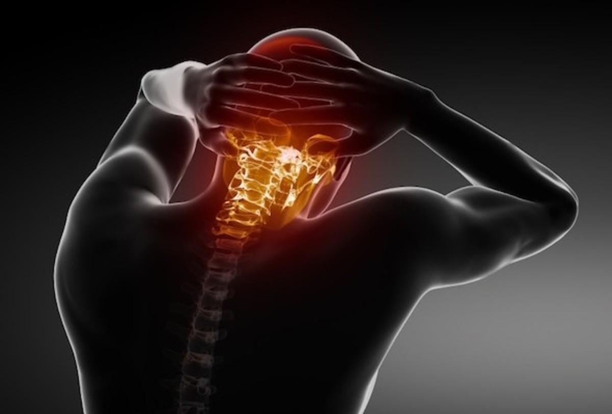 Αυχενικό σύνδρομο: Γιατί και πότε έχετε πόνους στον αυχένα | Newsit.gr