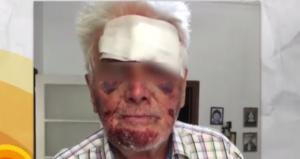 Επίθεση – σοκ στο Γαλάτσι – Χτύπησαν και μαχαίρωσαν ηλικιωμένο για 5 ευρώ!