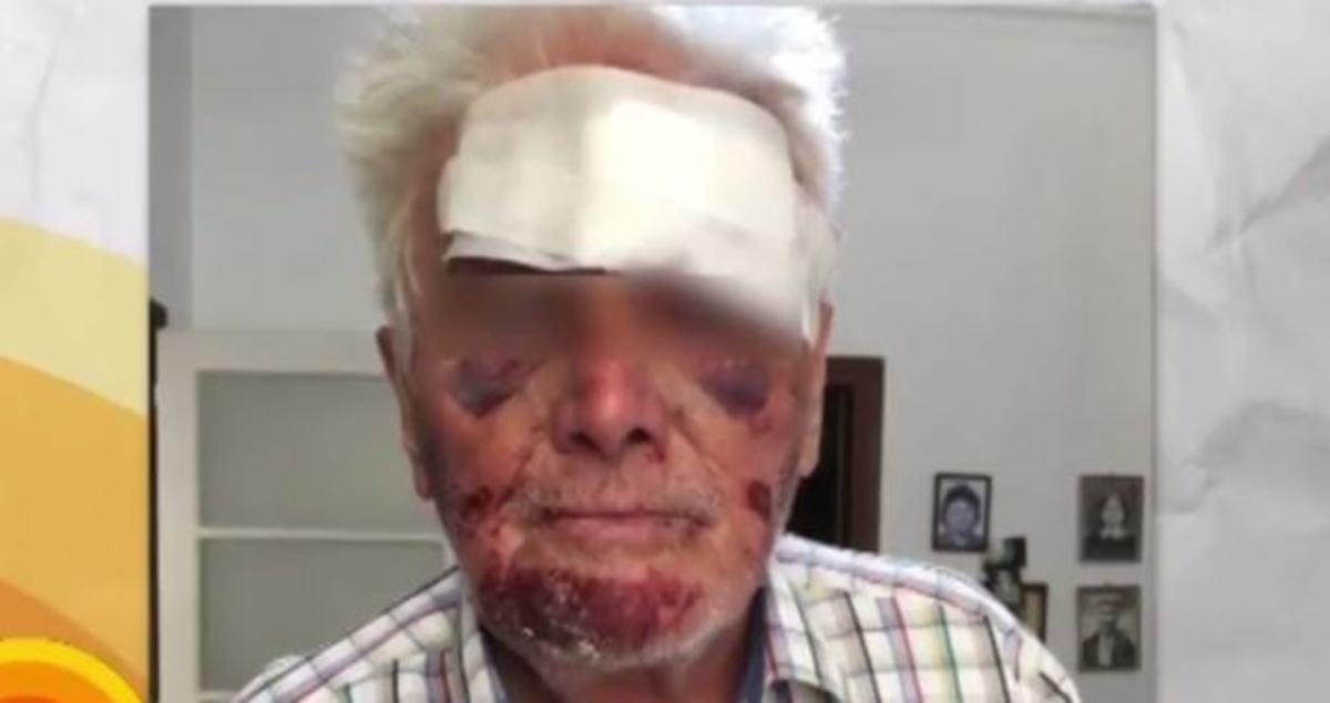 Αποτέλεσμα εικόνας για ληστες βασανιζουν ηλικιωμένους