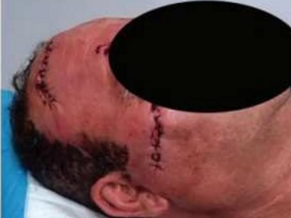 Πάτρα: Έκανε 40 ράμματα μετά από καβγά με τον γιατρό της γυναίκας του!   Newsit.gr