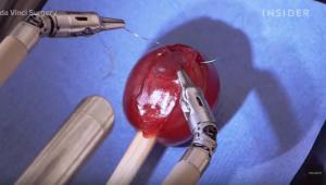Εντυπωσιακό: Ρομπότ κάνει εγχείρηση σε σταφύλι