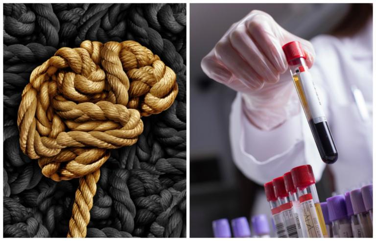 Πολλαπλή Σκλήρυνση: Δείκτης κινδύνου η έλλειψη πολύ γνωστής βιταμίνης – Φαίνεται με απλή εξέταση αίματος [vid] | Newsit.gr