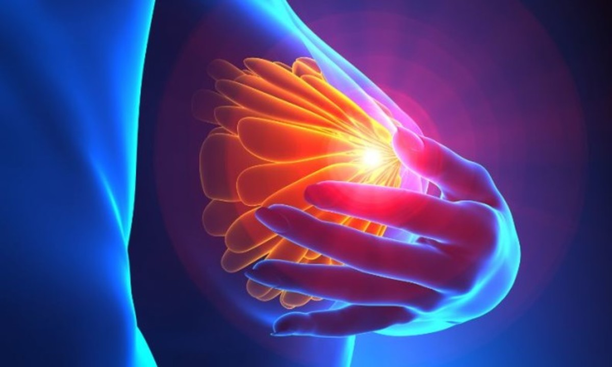 Φλεγμονώδης καρκίνος του μαστού: Συμπτώματα του πιο ύπουλου καρκίνου στο στήθος [vids] | Newsit.gr