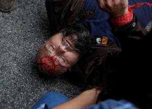 Δημοψήφισμα – Καταλονία: Οι εικόνες της ντροπής