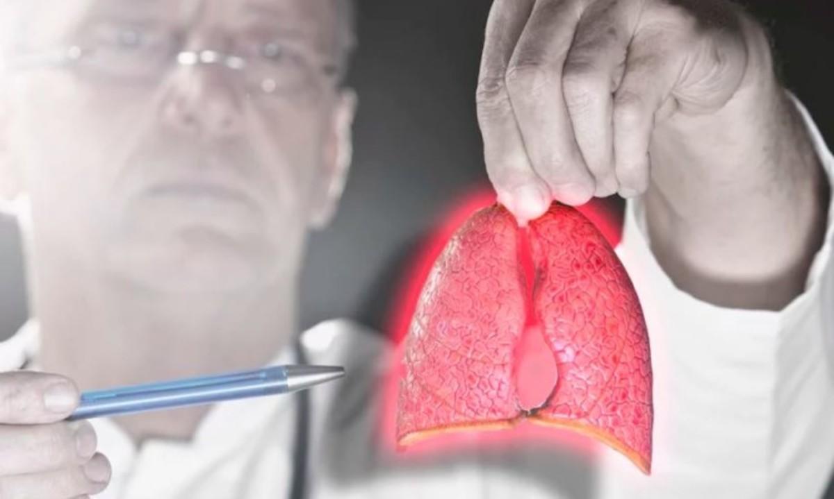 Καρκίνος του πνεύμονα: Πώς μπορεί να συμβεί σε όσους ΔΕΝ καπνίζουν!   Newsit.gr