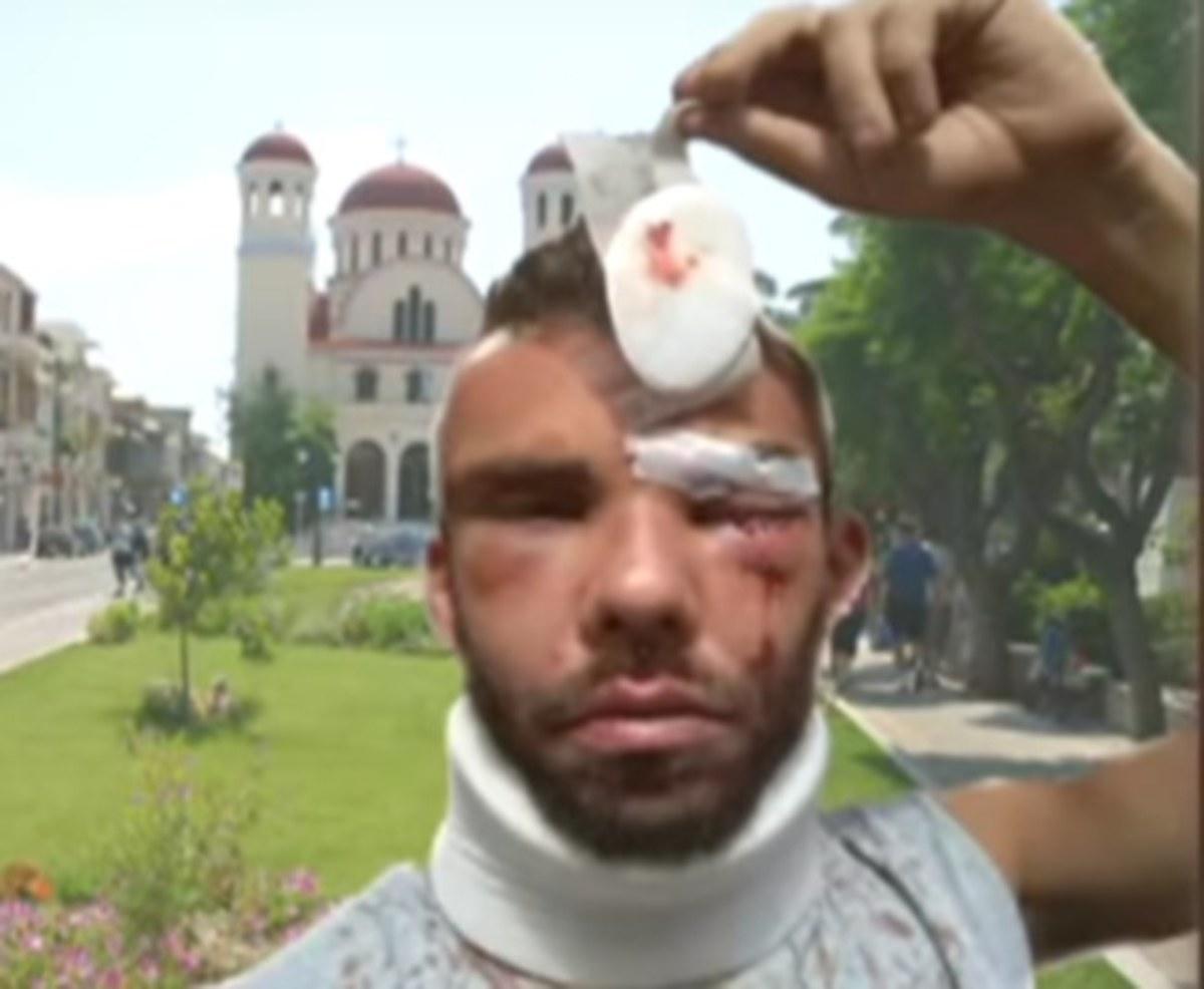 Ρέθυμνο: Σοκάρει ο ξυλοδαρμός του φοιτητή – Συλλήψεις, έρευνες και εξελίξεις μετά τη δολοφονική επίθεση [pic, vid] | Newsit.gr