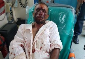 «Πόλεμος» κυβέρνησης – αντιπολίτευσης για τη δολοφονική επίθεση κατά μεταναστών στον Ασπρόπυργο