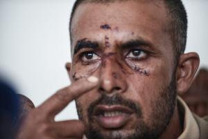 """Συγκλονίζει ο Ασφάκ Μαχμούτ για τον ξυλοδαρμό του από χρυσαυγίτες – """"Με είχαν στοχοποιήσει"""""""