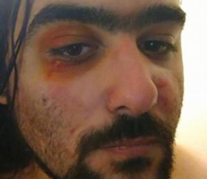 Θεσσαλονίκη: Έγδυσαν και πλάκωσαν στο ξύλο ποδηλάτη για τη μπλούζα που φορούσε – «Τα είδα όλα» [pics]