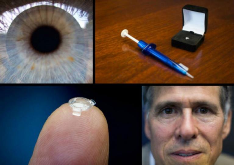 9e51aaa7df Βιονικός φακός βάζει τέλος σε γυαλιά και φακούς επαφής – Δείτε πώς  λειτουργεί  vid