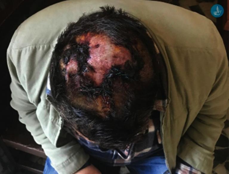 Ρόδος: Έσπασαν το κεφάλι και λήστεψαν γνωστό επιχειρηματία – Ισόβια μετά την αποκάλυψη της αλήθειας [pic] | Newsit.gr